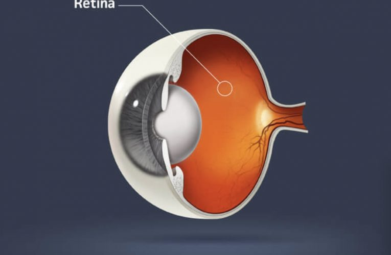 [旺角眼科醫生] 視網膜
