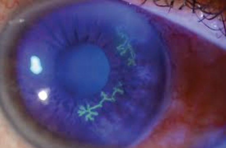[香港眼科醫生] 眼皰疹